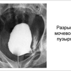 Доклад на тему:Разрыв мочевого пузыря